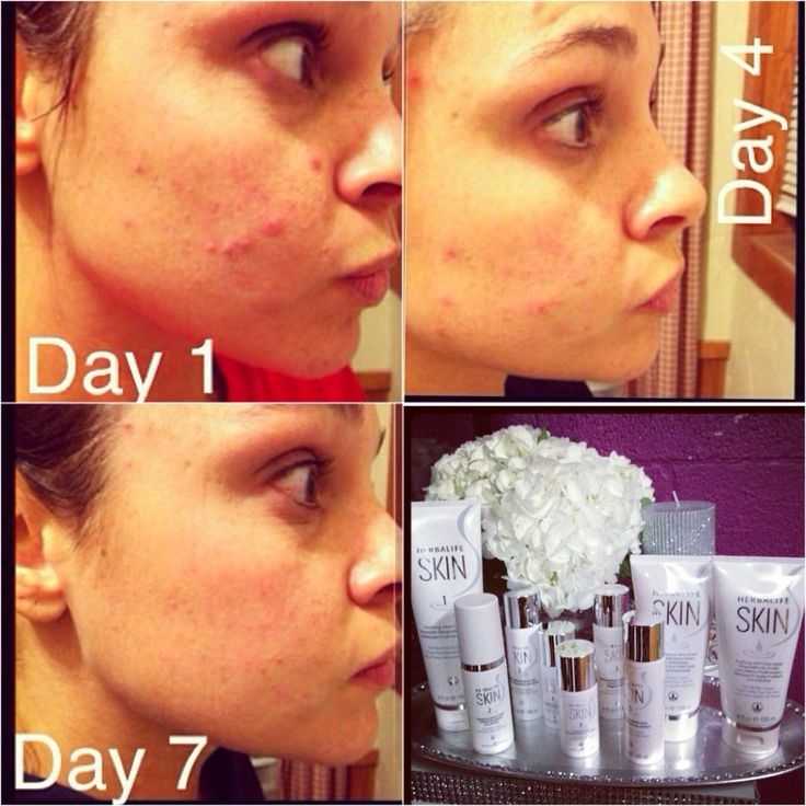 herbalife-skin-7-day-trial